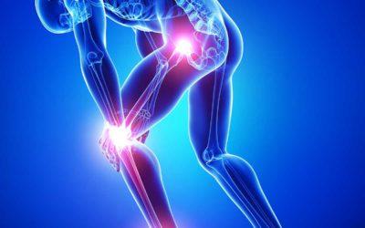 1574848735_RCyS41_Arthritis